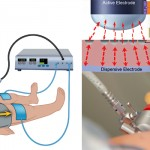 Fundamental Use of Surgical Energy (FUSE) - A SAGES Fundamentals Program